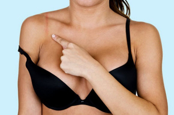 Avoid Bra Straps Digging From Your Shoulders
